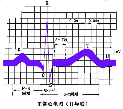 心电图导联位置图解